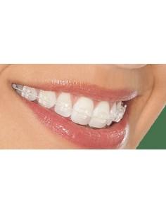 Ortodoncia estética...